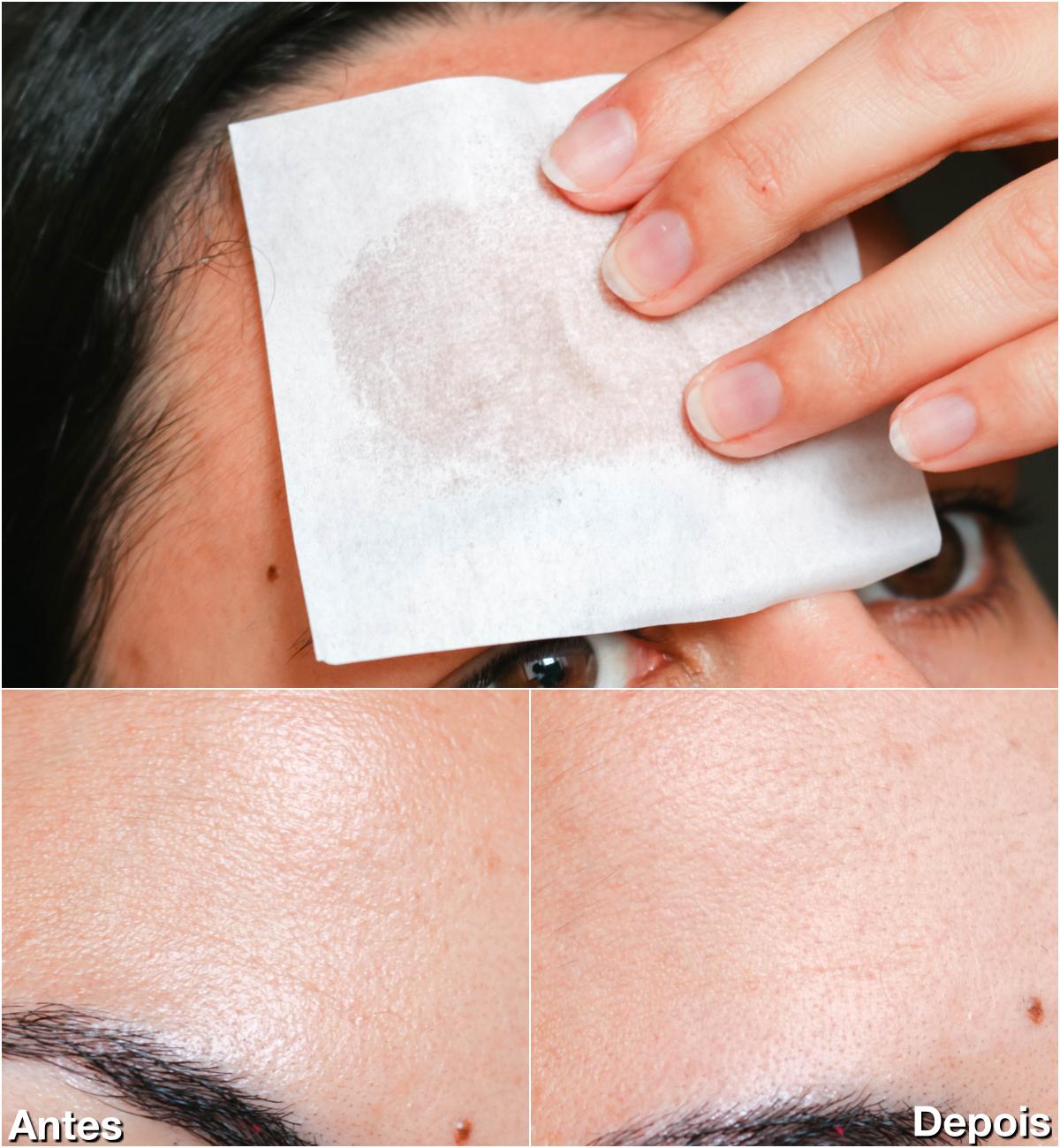 remover oleosidade do rosto